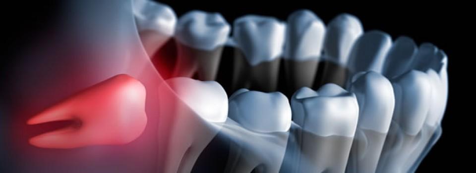 chirurgia orale cassino